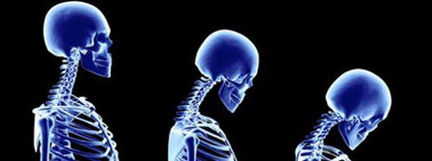 SALUD: Cómo corregir el Síndrome de la mala postura y no tener secuelas en tu físico (por Melisa Sacarelli, PF)